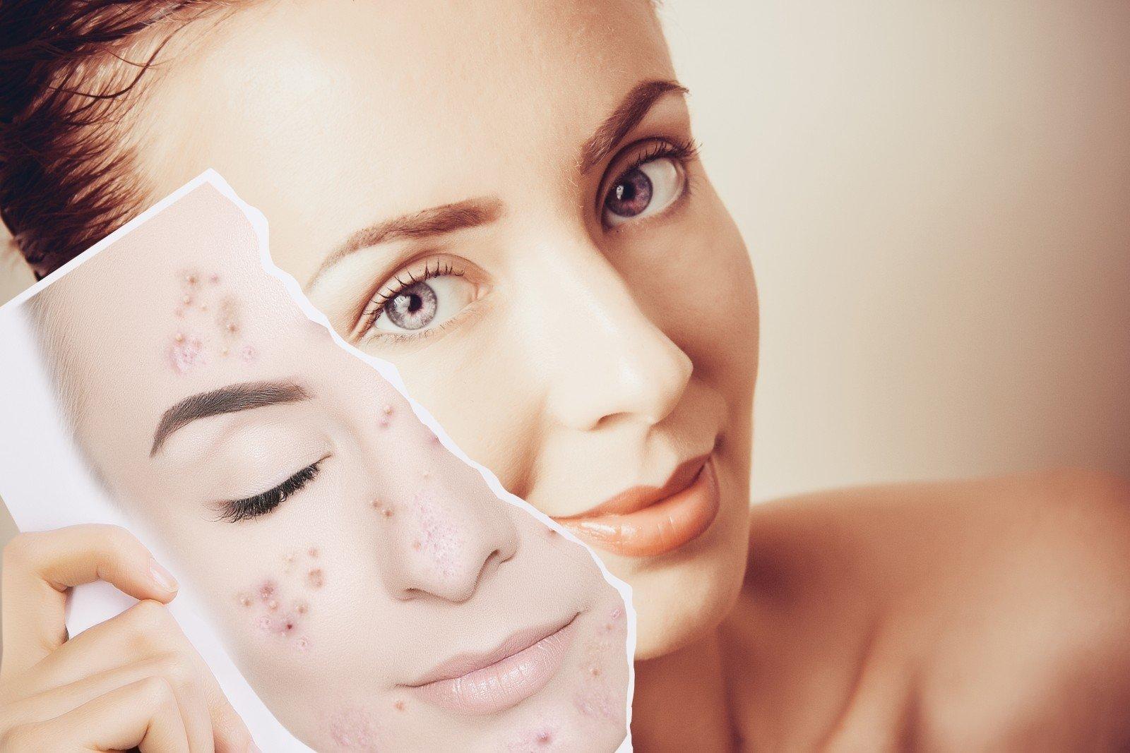 quitar las cicatrices del acné en la cara